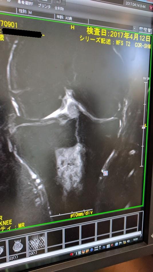 MRI U